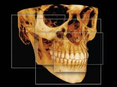pittsburgh dental implant radiography