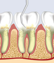 Scaling: The periodontist first removes the upper level of infected calculus.
